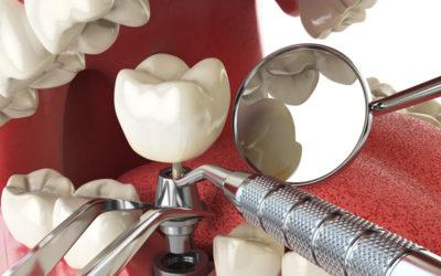 Darwenside Dental Presents: Dental Implants