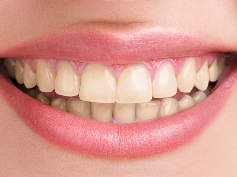 Tooth Whitening Before