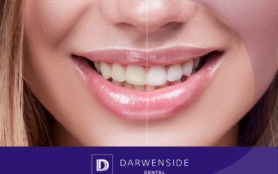 Setting the record straight: Teeth Whitening