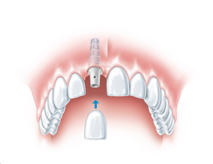 Can I have dental implants?